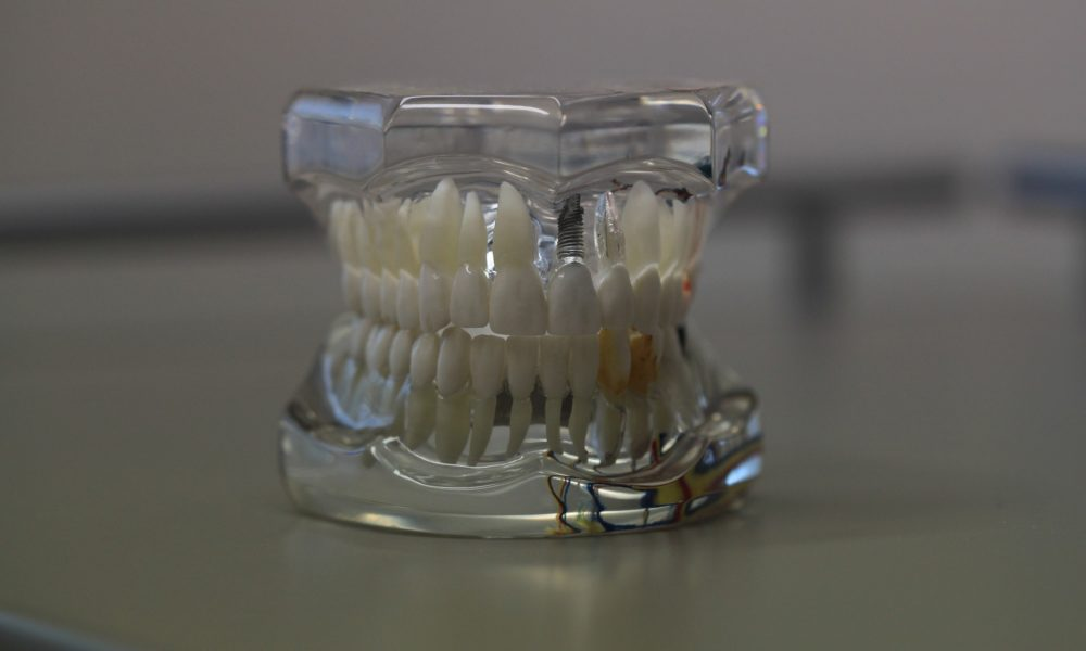 Zła metoda odżywiania się to większe niedobory w ustach oraz dodatkowo ich zgubę